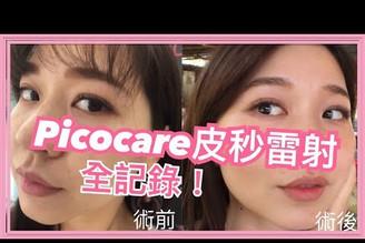 【保養】Picocare皮秒雷射全記錄!這麼神奇?真能改善斑點毛孔?